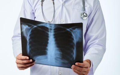 Ismét ingyenes tüdőszűrés Dunaharasztin