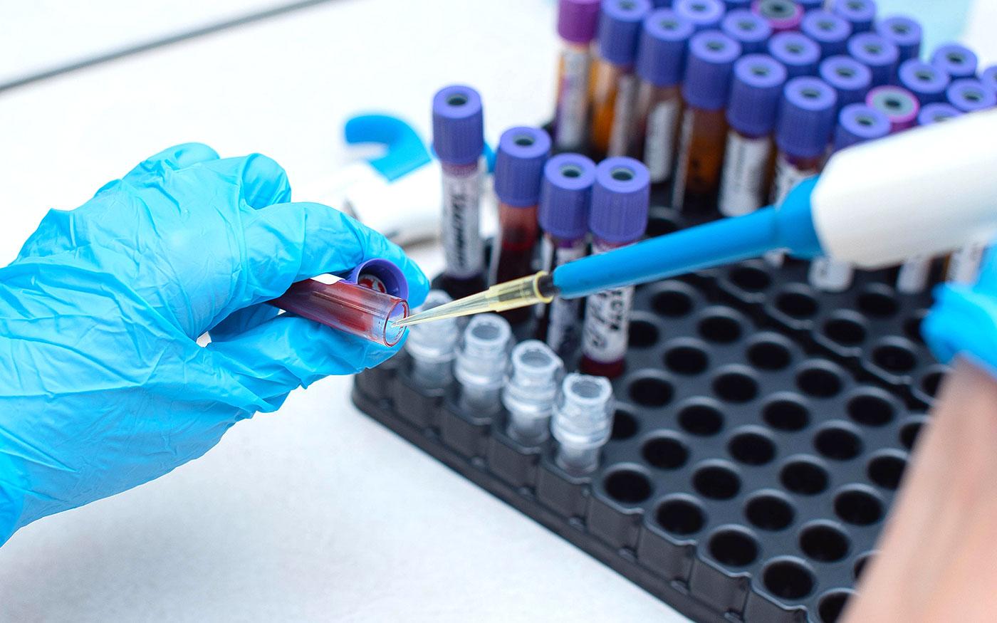 Dunaharasztiról 19 személyt vonnak be az országos koronavírus tesztbe