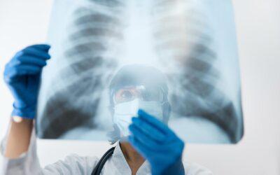 Másfél hónapon át lesz tüdőszűrés Dunaharasztin