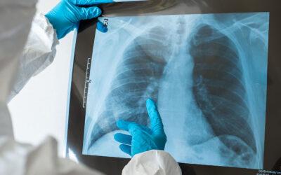 Elmarad a januárra tervezett tüdőszűrés