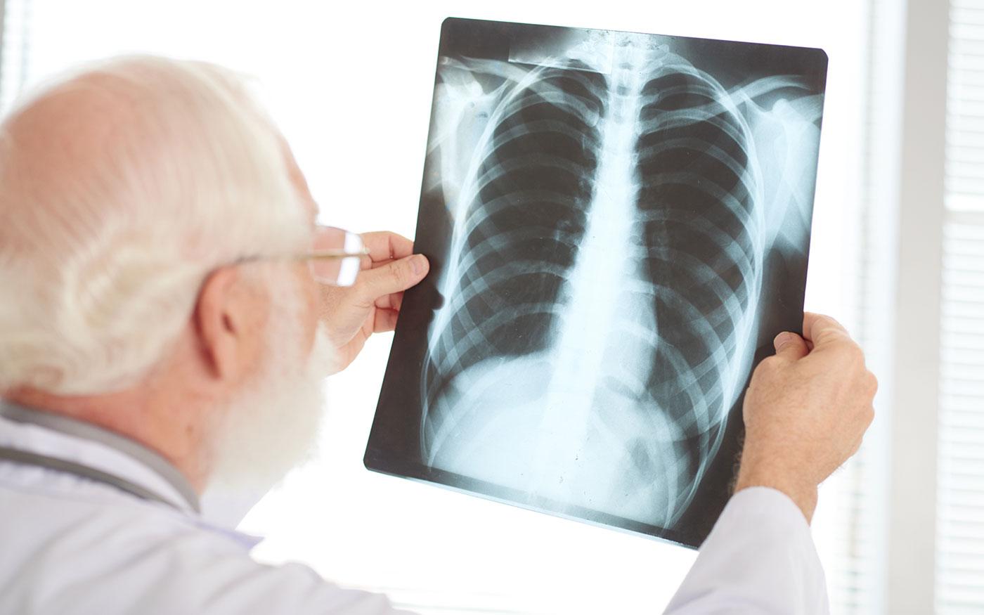 Biztonsági intézkedések a tüdőszűrésen